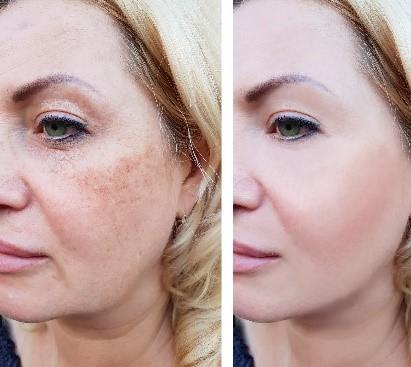 אישה לפני ואחרי שימוש בקרם